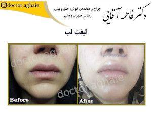 lift-lip11