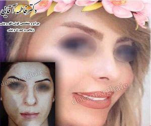 nose-plastic-surgery2