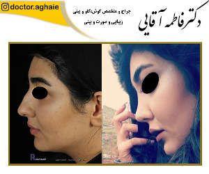nose-surgery6