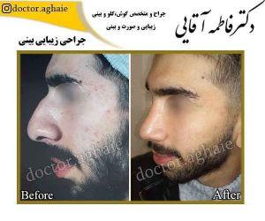 nose_plastic_surgery1